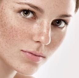 Vermideren hyperpigmentatie in uithoorn